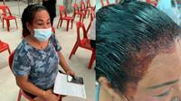 Aksi kocak wanita antre vaksin saat rambutnya masih dicat, jadi tontonan. (Sumber: World of Buzz)