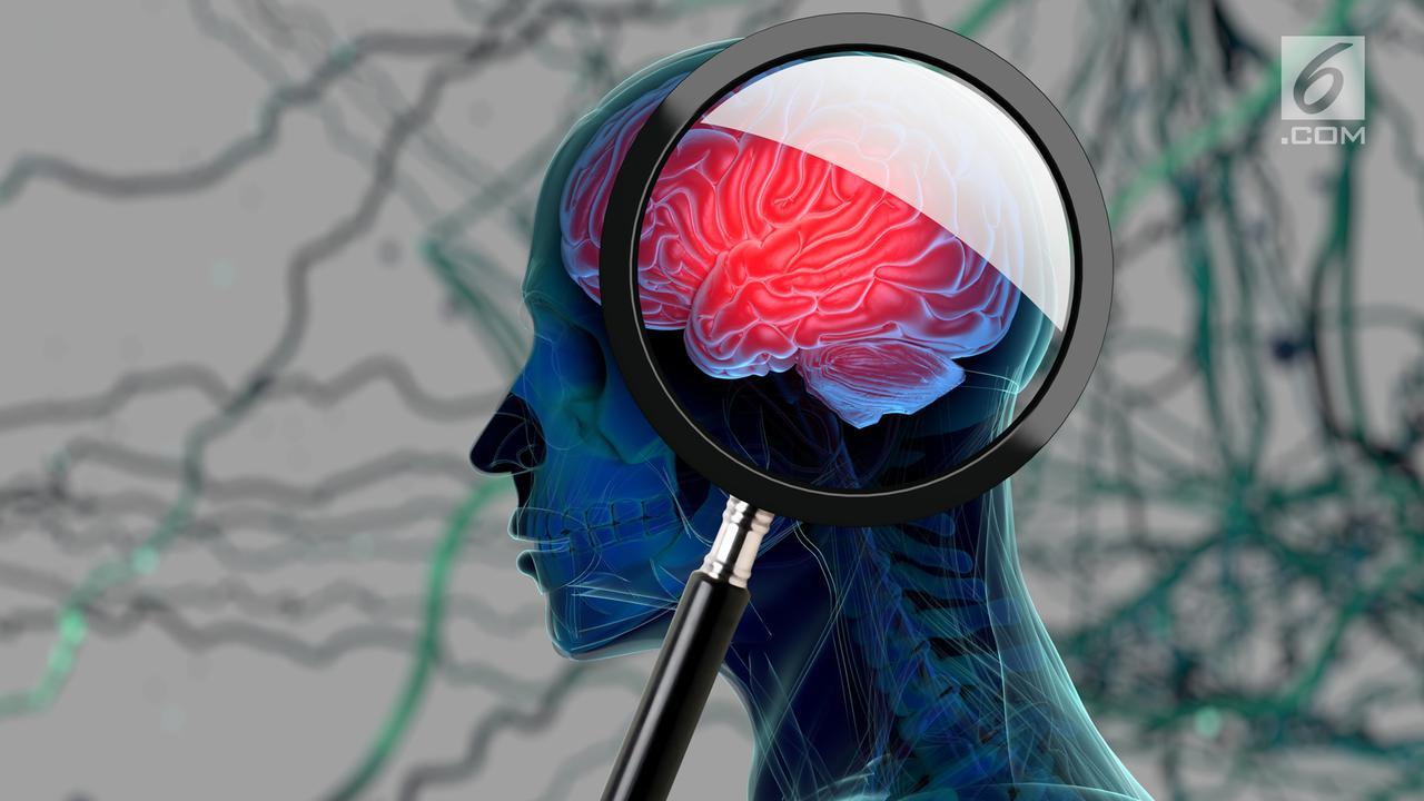 Kenali Aneurisma Otak, Penyebab Stroke yang Sering Tanpa Gejala
