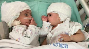 Kembar siam, yang baru saja dipisahkan di Pusat Medis Universitas Soroka di Beersheba, saling memandang untuk pertama kalinya, pada 5 September 2021 (Pusat Medis Universitas Soroka di Beersheba)