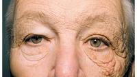 Begini wajah supir truk yang selama 28 tahun terpapar sinar matahari. (New England Journal of Medicine)
