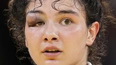 Madina Taimazova dari Komite Olimpiade Rusia mengalami memar pada bagian mata saat melawan Chizuru Arai dari Jepang dalam babak semifinal judo 70kg putri Olimpiade Tokyo 2020, Rabu (28/7/2021). (Foto: AP/Vincent Thian)