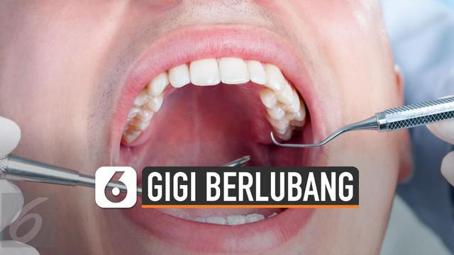 Gigi berlubang bisa terjadi akibat kebiasaan buruk seperti konsumsi makanan manis yang mengandung gula.