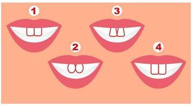 Bentuk Dua Gigi Depan Dapat Ungkap Kepribadian Seseorang, Kamu yang Mana?