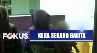 Seekor era liar masuk rumah warga lalu menyerang seorang balita di Probolinggo, Jawa Timur.