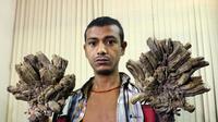 Seorang pria di Bangladesh dijuluki manusia akar karena memiliki banyak kutil di tangan dan kakinya.