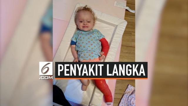 Seorang anak berusia 2 tahun mengidap penyakit langka Osteogenesis Imperfecta (OI) atau yang dikenal penyakit tulang rapuh. Kondisi itu dialaminya sejak berusia 3 bulan.