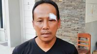 Asisten pelatih Persis Solo, Choirul Huda dengan luka jaihtan di pelipis kirinya. (Bola.com/Vincentius Atmaja)