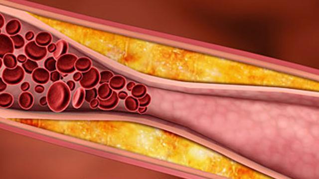 Image result for kolesterol