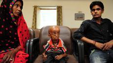 Rupesh Kumar (tengah) bersama ibu dan adiknya di Kantor Magistrat Allahabad, India, Selasa (2/5). Pria 21 tahun itu menderita penyakit penuaan langka progeria Hutchinson-Gilford yang hanya terjadi pada 1 dari 8 juta orang di dunia. (SANJAY KANOJIA / AFP)
