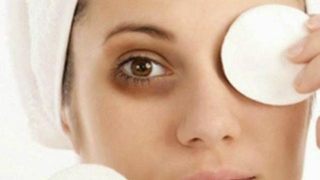 3 Cara yang Tak Terfikirkan untuk Hilangkan Kantung Mata Hitam