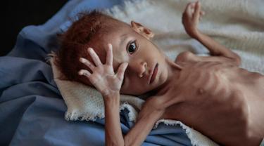 Seorang anak laki-laki penderita gizi buruk berada di tempat tidur rumah sakit di Aslam Health Centre, Hajjah, Yaman (1/11). Malnutrisi, kolera, dan penyakit epidemi lainnya seperti difteri telah menular di daerah tersebut. (AP Photo / Hani Mohammed)