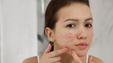 4 Cara Alami Menyembuhkan Jerawat Kistik Yang Meradang Dan Menyakitkan Beauty Fimela Com