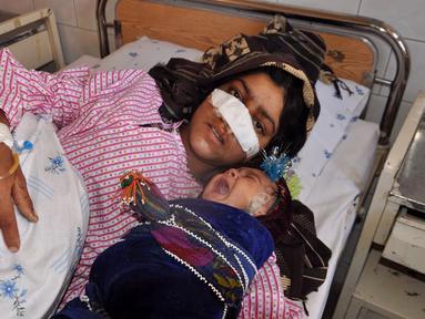 Reza Gul (20) bersama bayinya menjalani perawatan di rumah sakit di Provinsi Faryab, Afghanistan, 19 Januari 2016. Wanita yang telah enam tahun menikah itu mengalami cacat fisik setelah sang suami memotong hidungnya dengan pisau. (AFP PHOTO/Hasan Sirdash)