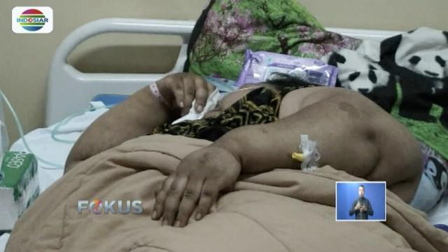 Suniarti, wanita penderita obesitas berbobot 148 kilogram asal Bandung, jalani diet ketat.