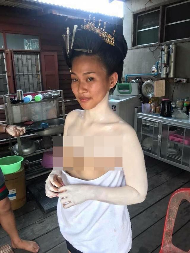 Viral: Enggak Hanya Muka, Tapi Juga di Sekujur Tubuh