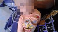 Foto: Putra, bayi tujuh bulan yang menderita Hidrosefalus di Kabupaten Ende Flores, NTT (Liputan6.com/Dion)