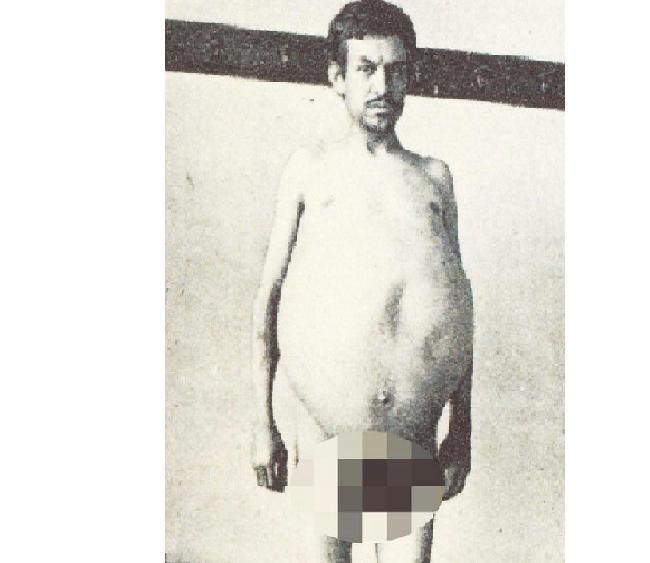 (Credit: The Mütter Museum of The College of Physicians of Philadelphia via Lad Bible) Foto pria yang kerap disebut sebagai manusia balaon karena kondisi kelainan yang dialaminya.