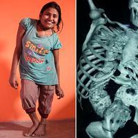 Meskipun berisiko kematian, perempuan India penderita skoliosis ini berani menerima tawaran operasi tulang belakang.