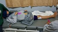 Peluru yang menembus betis kanan Putri Yulia (23), ibu rumah tangga yang tertembak di Kota Kendari.(Liputan6.com/Ahmad Akbar Fua)