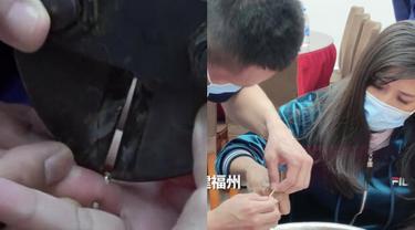 Akibat Naik 10 Kg, Wanita Ini Terpaksa Potong Cincin Berliannya Agar Bisa Dilepas