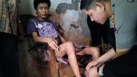 Pemuda Probolinggo mulai dipasung keluarganya usai alami overdosis pil koplo tiga tahun lalu. (Liputan6.com/Dian Kurniawan)