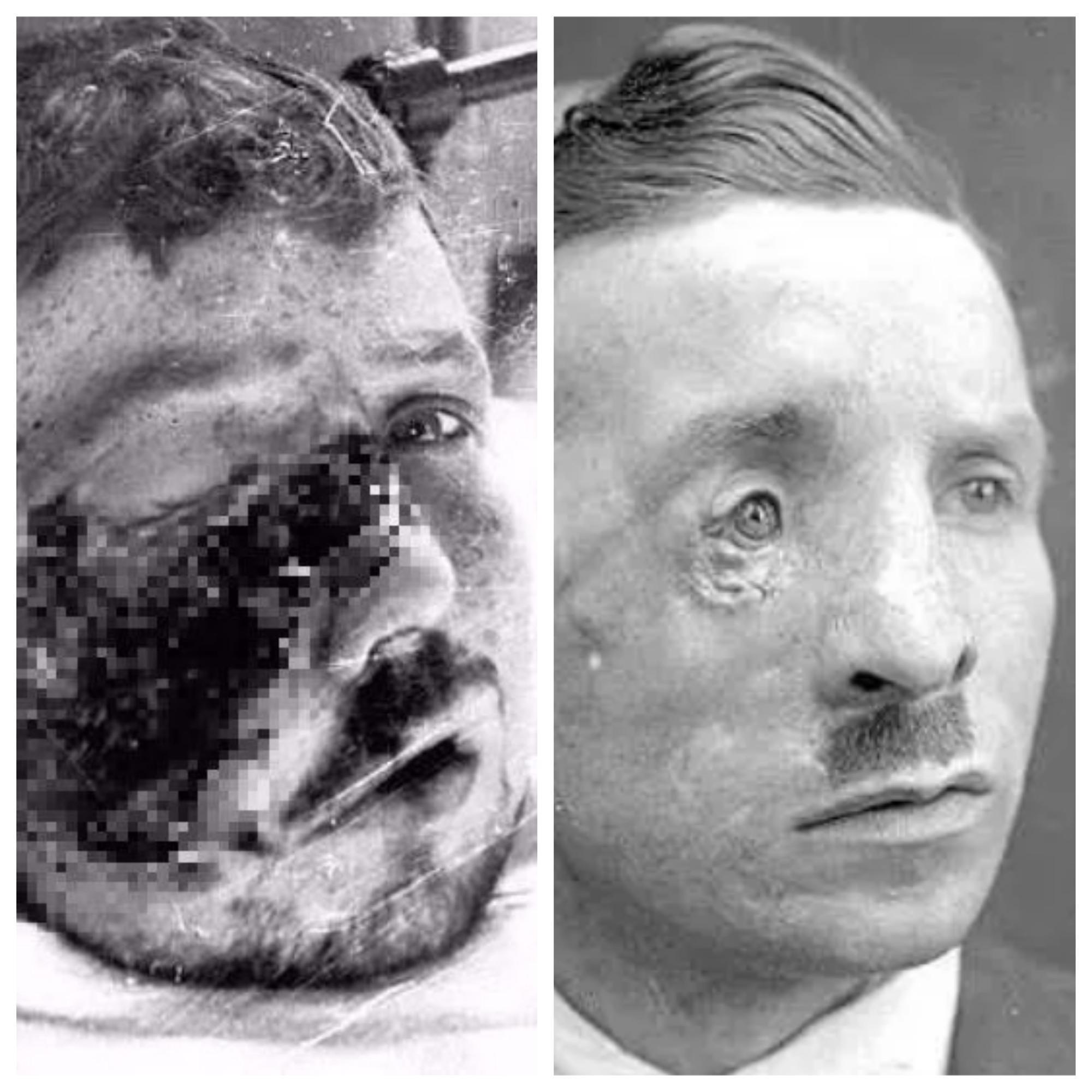 Foto sebelum dan sesudah Prajurit Harold Page melakukan operasi plastik karena wajahnya terluka akibat perang. Credits: Media Drum World via The Sun