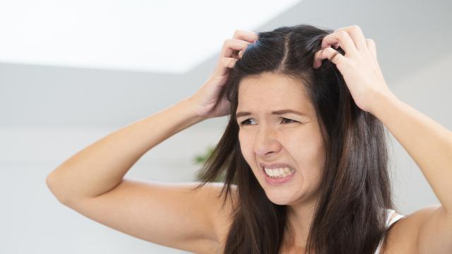 Cara Menghilangkan Kutu Rambut dan Telur Kutu Secara Alami dan ... 35fafbe6e3