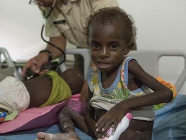 Seorang anak menjalani perawatan di rumah sakit setempat di Agats, Asmat, provinsi Papua Barat (26/1). Sebanyak 86 pasien anak gizi buruk dan campak di Kabupaten Asmat masih dirawat di Rumah Sakit Umum Daerah (RSUD) setempat. (AFP/Bay Ismoyo)