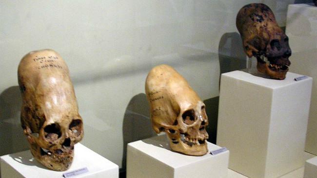Cukup banyak temuan tengkorak memanjang di Peru, semisal temuan di Paracas ini. (Sumber WIkimedia Commons)