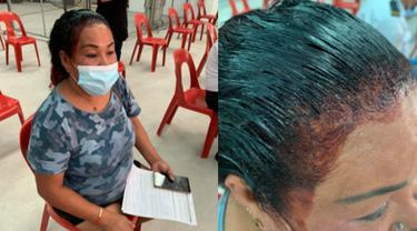 Tak Ingin Ketinggalan Vaksin, Aksi Kocak Wanita Ini Antre saat Rambut Sedang Dicat