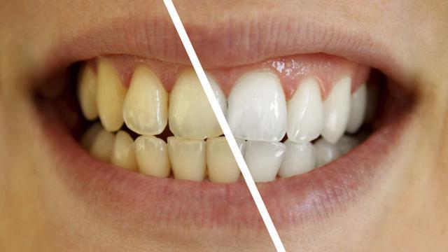 6 Cara Mudah Putihkan Gigi Tanpa Ribet Health Liputan6 Com
