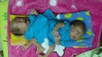 Pemeriksaan bayi kembar siam asal Subang itu dilakukan untuk mengetahui perkembangan kondisi kesehatan dan berat badan ideal memutuskan tindakan operasi pemisahan. (Sumber foto : Dadang Sjarief Hidajat)