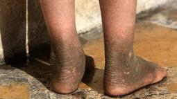 Doaa, bocah berumur lima tahun memperlihatkan kulit kakinya yang berubah akibat dampak bom kimia di Qayyara, Irak, (12/11). Militan ISIS telah membakar pabrik kimia yang menyebabkan tersebarnya zat-zat kimia ke warga sekitar. (REUTERS/Air Jalal)