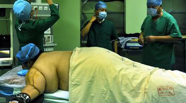 Operasi Bariatrik Juga Bisa Turunkan Risiko Diabetes