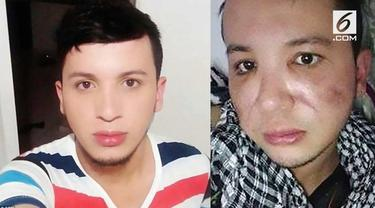 Malang betul nasib pria di Kolombia ini. Niat hati melakukan operasi plastik agar tampan, wajahnya malah jadi membusuk.