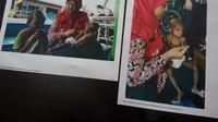 Tim DERU UGM melakukan mitigasi gizi buruk Asmat