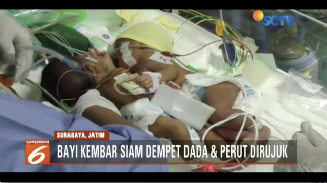 RSUD Dokter Soetomo Surbaya, kembali menangani bayi kembar siam dempet perut dan dada, setelah mendapati rujukan dari Rumah Sakit Ibu dan Anak Fatimah Lamongan.