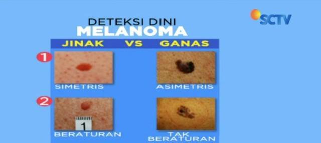 Waspada kanker kulit melanoma! Penyakit yang menyerang menantu Hatta Rajasa ini berpotensi mematikan. Kenali gejalanya dan lakukan pencegahan sejak dini, bagaimana?