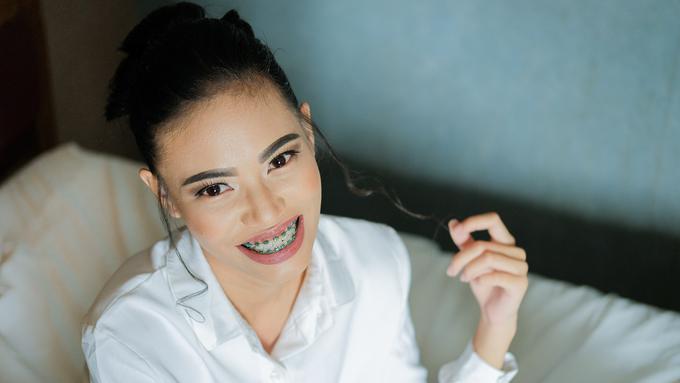 Cara Menyikat Gigi Dengan Benar Bagi Pengguna Behel Beauty Fimela Com