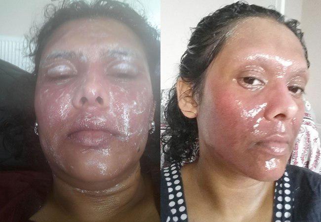 Shabana mengolesi wajahnya dengan krim steroid dan emolien untuk mengurangi rasa sakit | foto: copyright dailymail.co.uk