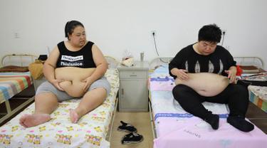 Melihat Terapi Bekam Penurun Berat Badan di China