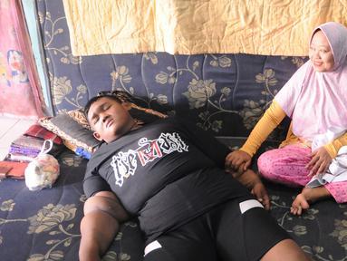 Arya Permana beristirahat dikediamannya di kawasan Karawang, Jawa Barat, Selasa (9/4). Arya Permana diketahui memiliki berat badan hingga 192 kg, sekarang sudah turun 105 kg menjadi 87 kg pasca operasi lambung. (Liputan6.com/Herman Zakharia)