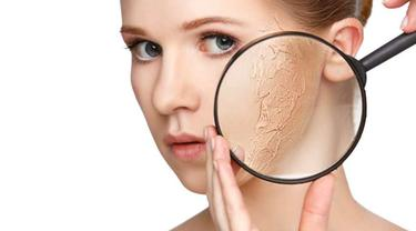 10 Cara Mengatasi Kulit Kering pada Wajah secara Alami, Kenali juga Penyebabnya