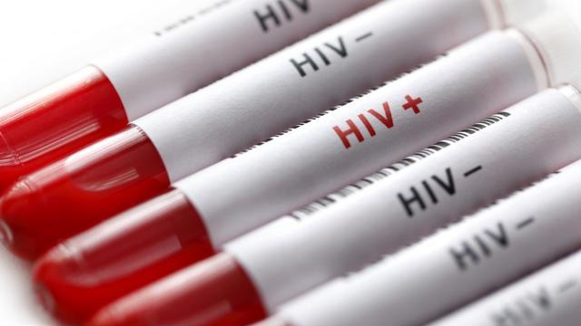 [Bintang] Ilustrasi HIV