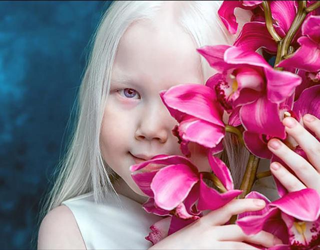 Naryana adalah gadis albino yang sangat unik dan eksotik | Photo: Copyright boredpanda.com