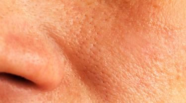 Jangan pakai bahan kimia terus, kecilkan pori-pori di wajahmu dengan bahan alami yang ampuh ini, yuk.