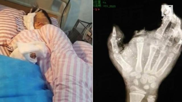 Seorang bocah laki-laki di Tiongkok harus mengalami hal mengerikan. Ia mengalami kebutaan akibat ponsel yang meledak saat dicas.