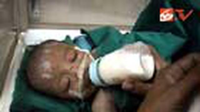 Seorang ibu di Sunter, Jakut, tega menyiksa anaknya yang baru berumur lima bulan hingga menderita patah tulang di bagian tangan dan kakinya.