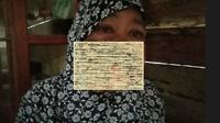 Salmiah (48) warga Dusun Tangkao Indah, Desa Tabolang, Kecamatan Topoyo, Kabupaten Mamuju Tengah, Sulawesi Barat (Sulbar) hanya bisa pasrah dengan penyakit tumor ganas di wajahnya. (Liputan6.com. Abdul Rajab)