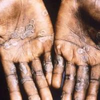 Monkeypox, infeksi virus langka mirip dengan cacar (Photo: CDC Public Health Image Library)